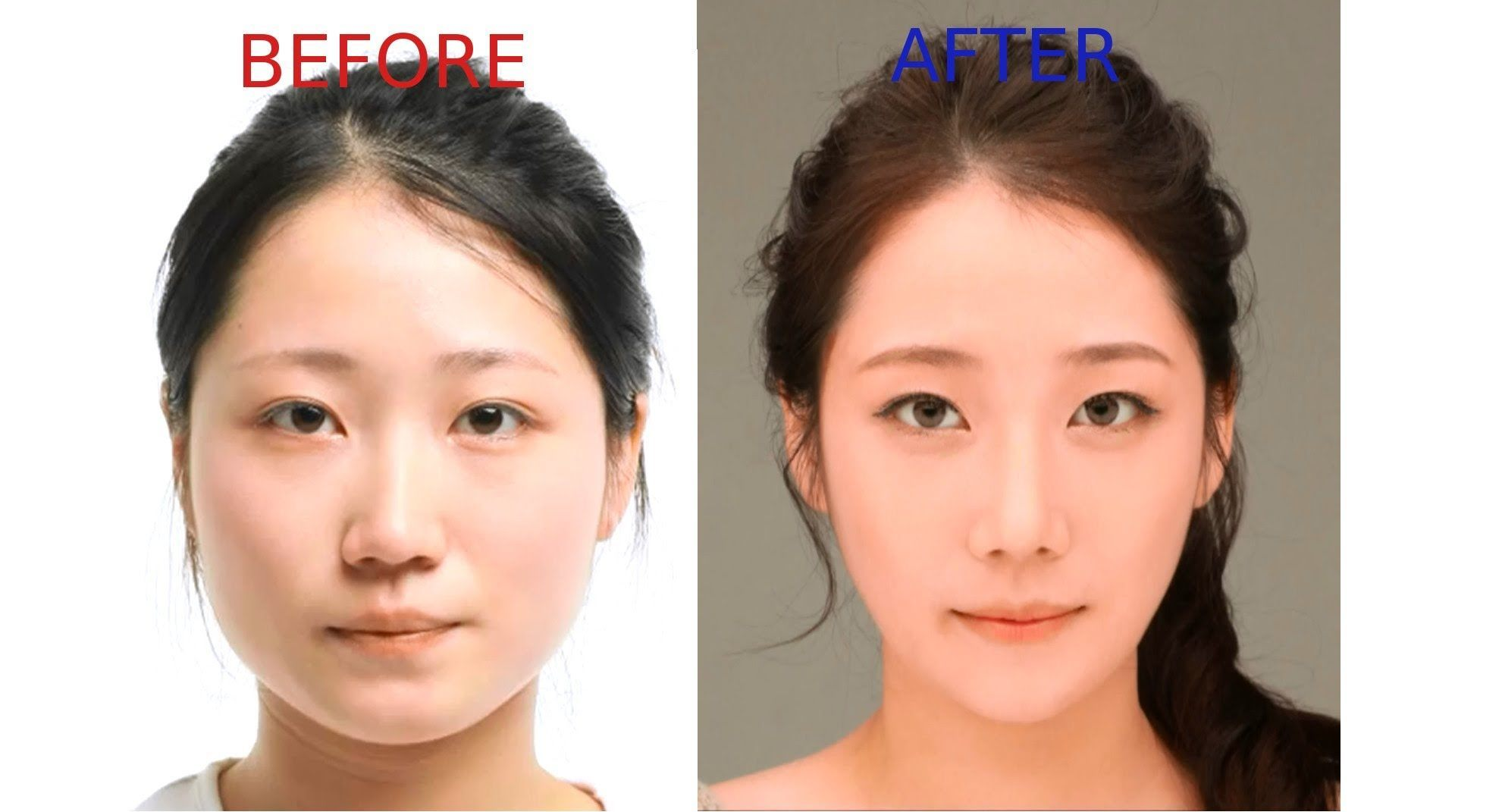 Women Before and After looks after Plastic Surgery