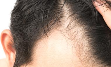 Man who needs medical hair transplant for medical travel