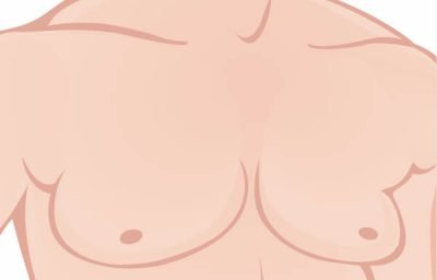 Male Breast Reduction Surgery in Seoul