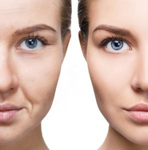 woman before after anti aging