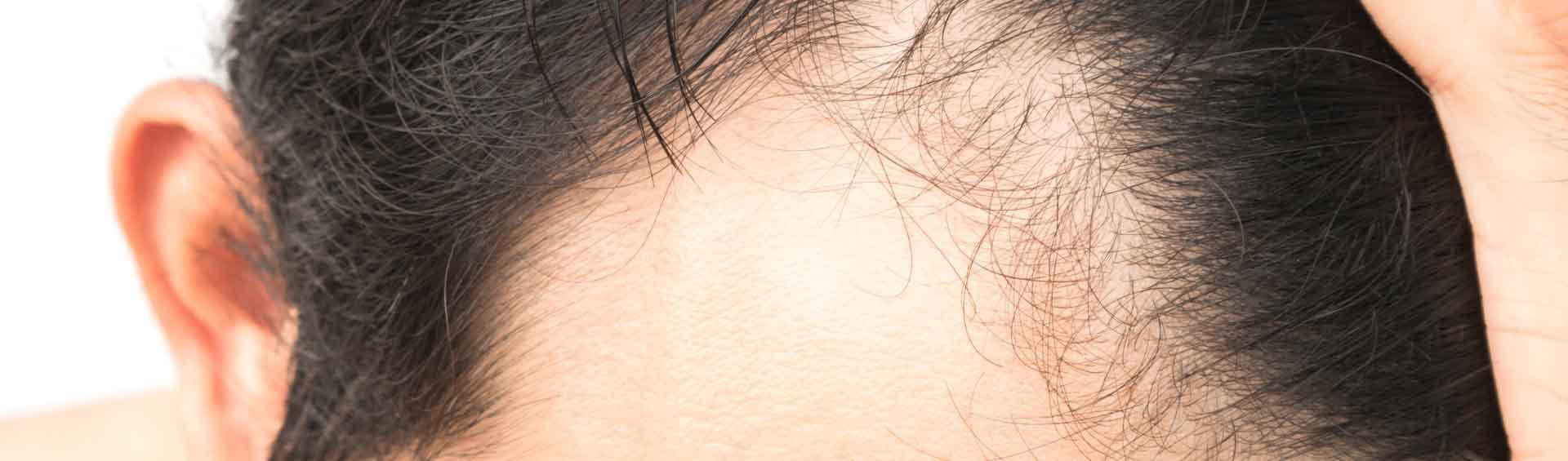 hair transplant in seoul