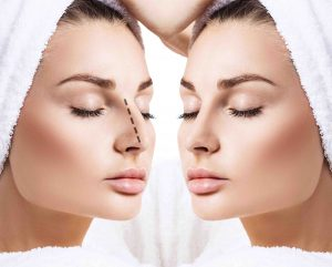 cosmetic surgery of the nose